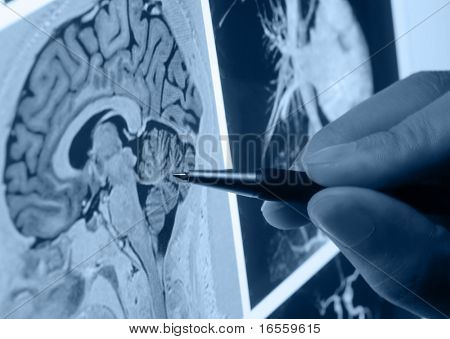 pen showing X-ray picture of human brain on screen
