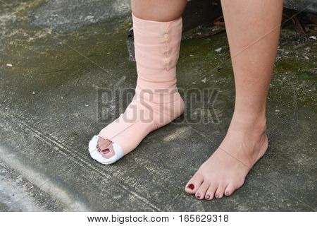 Women foot with splint on the leg