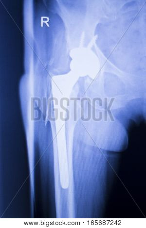 Hip Joint Replacement Xray