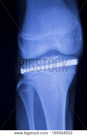 Knee Joint Implant Xray