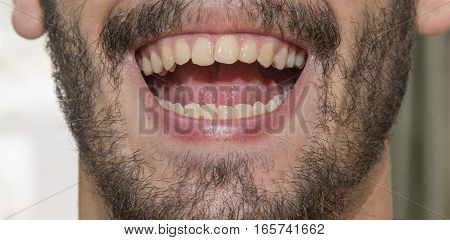 The Bearded Man Smiles, Showing Bad Teeth.