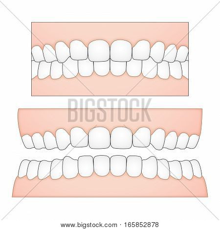 Vector illustration of white teeth and gums from a frontal perspective. Anatomical presentation for dentists and other dental / medical purposes. Variations of gaps and missing teeth can be displayed as each tooth is a single object.