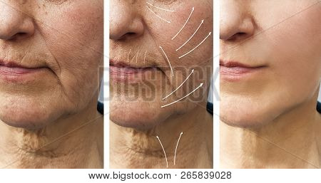 Woman Elderly Facial Wrinkles Correction Before And After Procedures Arrow