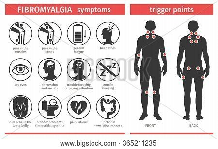 Symptoms And Signs Of Fibromyalgia. Tender Points. Infographics. Template For Use In Medical Agitati