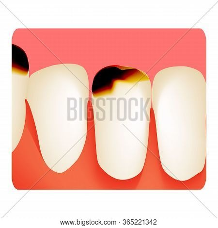 Dental Caries. Tooth Decay. Caries Infographics. Vector Illustration On Isolated Background.