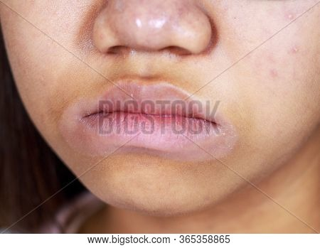 Asia Teenage Girl Ethnic Origin Asian Have Skin Marks Around Their Mouth Peeling Off, Possibly Due T
