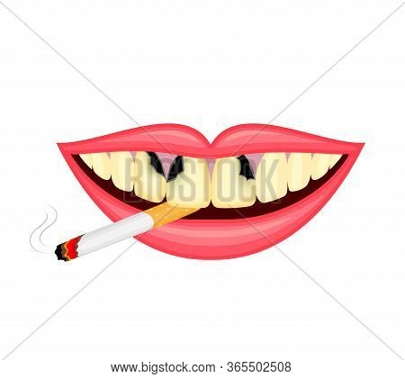 Cigarette In Human Mouth. Smoking Causes Damage To The Teeth. World No Tobacco Day. Illustration Iso