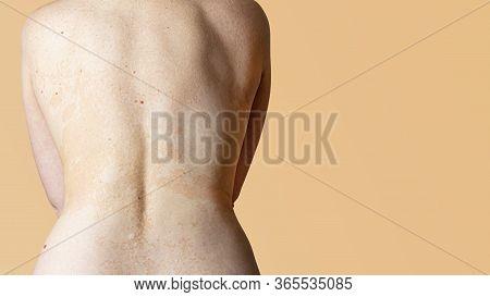 Allergic Dermatitis On The Skin Of A Woman's Back. Skin Disease. Neurodermatitis Disease, Eczema Or