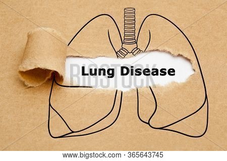 Text Lung Disease Appearing Behind Ripped Brown Paper In Human Lungs Drawing. Concept About Differen