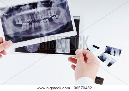 Panoramic Dental X-ray Image Of Teeth.