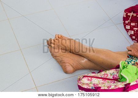 closeup feet of old asian man suffering from leprosy with a cane on the ground