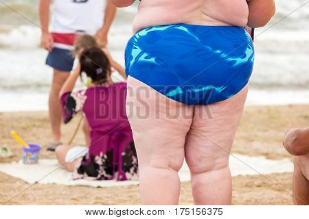 Legs of an obese woman. Fat person standing on beach. Change lifestyle to save health. Increased risk of cancers.