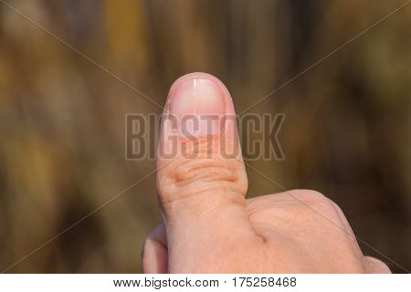 Forked Nail On The Thumb. Dilation Of The Nail, Traumatic Pathology. The Nail Is Divided In Half