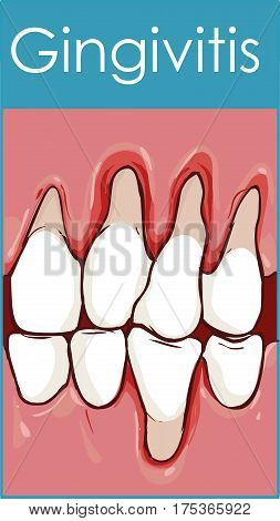 Gingivitis. Inflammation of the gums. Vector illustration on isolated background.