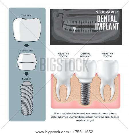 Infographic dental implant structure info poster with colourless picture of human jaw. Vector illustration of dental implant structure screw with abutment near crown and comparison with healthy tooth