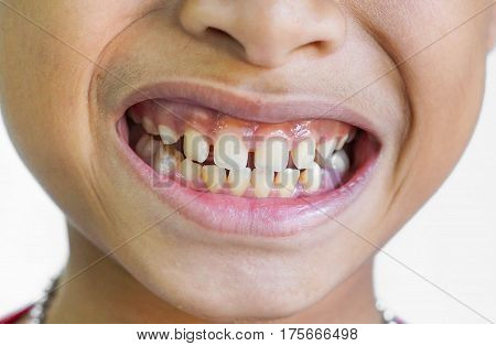Front teeth gaps in children / Diastemas