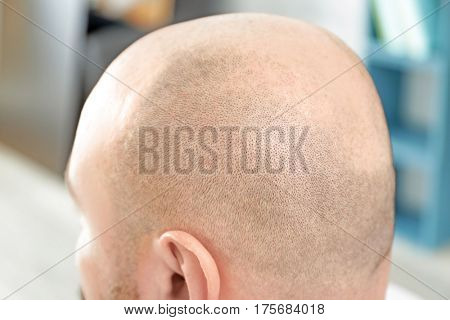 Bald man on blurred background, closeup