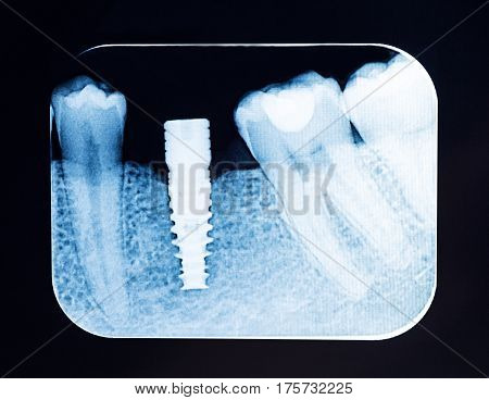 Close up Dental X Ray screw implant .