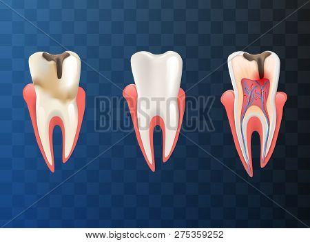 Realistic Illustration Set Teeth Different Problem. Vector Image 3d Visualization Dental Diseases Hu
