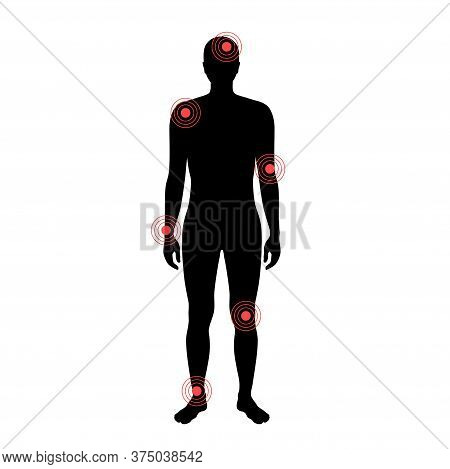 Flat Vector Isolated Illustration Of Pain And Inflammation In Naked Man Body . Black Silhouette On W