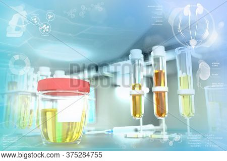 Urine Sample Test For Yeast Or Crystalline Uric Acid - Test-tubes In Modern Scientific College Offic