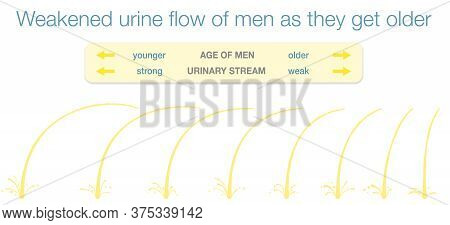 Weakened Urinary Flow Of Men As They Get Older. Urine Stream Samples Of Young And Old Men With Stron