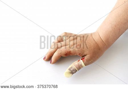 Hand Of An Adult Woman With A Bleeding Wound On The Thumb Of Her Right Hand. Medical Bandage, Rubber