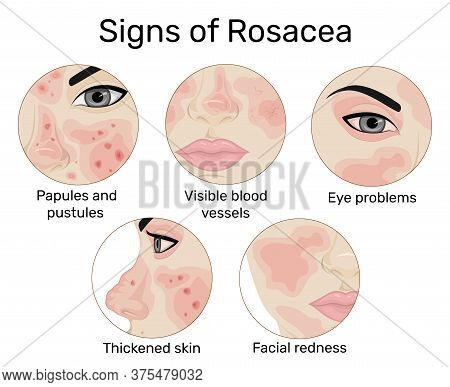 An Illustration Of The Five Signs Of Rosacea Such As Redness Of The Skin, Papules And Pustules, Visi