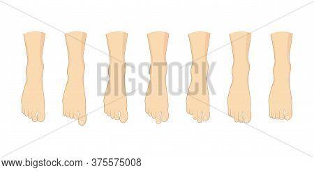 Foot Toe Shape Types Set. Human Feet Vector Illustration. Body Forefoot Anatomy