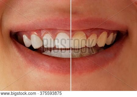Teeth Whitening Before After. Woman Teeth Before And After Whitening. Dental Health Concept. Oral Ca