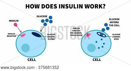 Flat Vector Illustration Of Importance Of Insulin. How Does Insulin Work, Educational Medical Visual