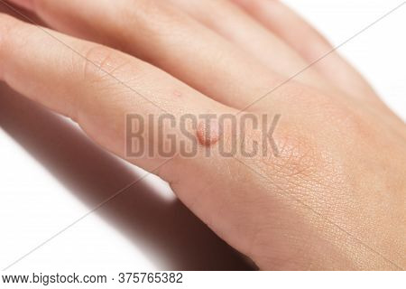 Common Wart Verruca Vulgaris A Flat Wart Commonly Found On The Hand Of Children And Adults. They Are