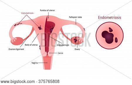 Endometriosis Of Uterus Involves Ovaries, Fallopian Tubes And Cervix. Endometriosis Close Up. Womb W