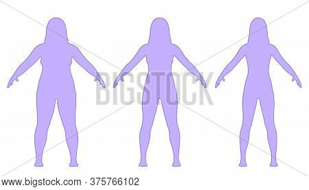 Steps Of Losing Weight Woman From Fat To Slim. Overweight Woman Before And After Weight Loss On Whit