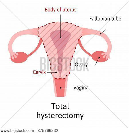 Hysterectomy, Surgical Removal Of The Uterus. Medical Vector Illustration Shows One Type Of Hysterec