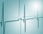 A medical background with a heart beat / pulse with a heart rate monitor symbol poster