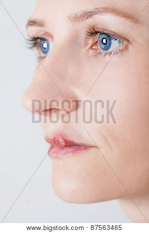 beautiful woman with lips virus infected herpes isolated on white background poster
