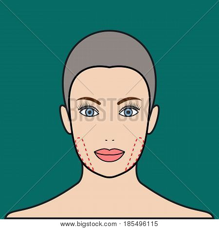 Plastic surgery buccal fat removal. Cosmetic surgery. Vector illustration.