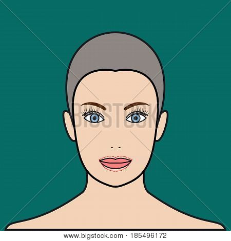Lip augmentation with injection of hyaluronic acid filler. Cheiloplasty plastic operation. Vector illustration