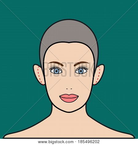 Otoplasty. Plastic surgerychange shape and size of ears. Cosmetic surgery. Vector illustration.