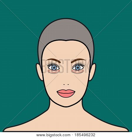 Plastic surgery of eyelids operation removal of bags under eyes. Blepharoplasty. Beautiful female face with marks. Vector illustration.