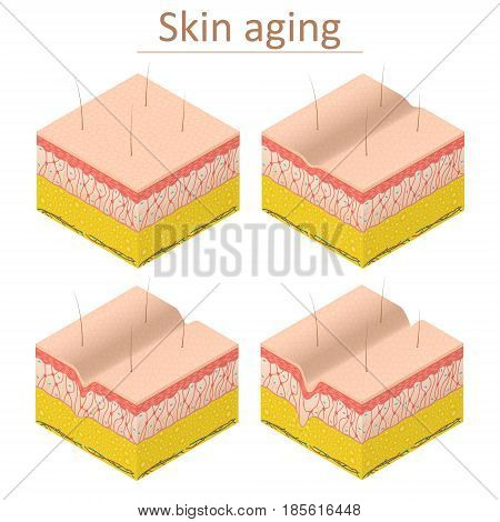 Skin Aging Set Isometric View Normal and Wrinkle Epidermis for Poster and Card. Vector illustration