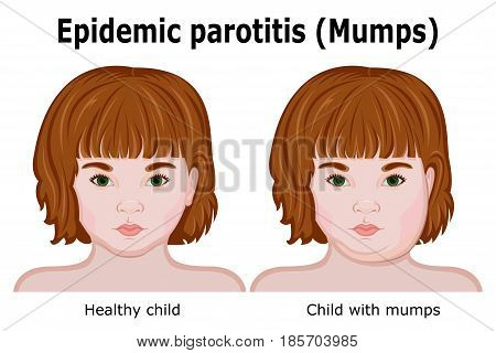 A Little red-haired girl with mumps symptoms