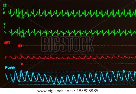 Monitor showing atrioventricular nodal reentrant tachycardia (AVNRT) on green lines, arterial blood pressure on red line and oxygen saturation of blue line against a black background with noninvasive blood pressure and temperature.