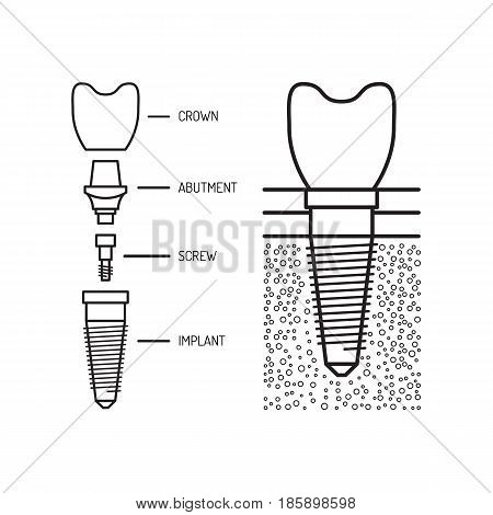 Dental implant and its structure is painted in a flat linear style, vector illustration isolated on white background, medical illustration