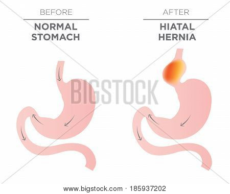 Medical image of Hiatus hernia -Medical image of Hiatus hernia