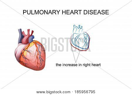 vector illustration pulmonary heart disease. medicine and health.