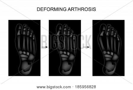 vector illustration of deforming arthrosis of the foot