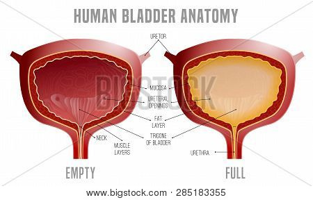 Full And Empty Urinary Bladder. Human Organ Anatomy. Editable Vector Illustration In Realistic Style