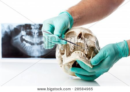 Dentist showing dental caries in a human skull.
